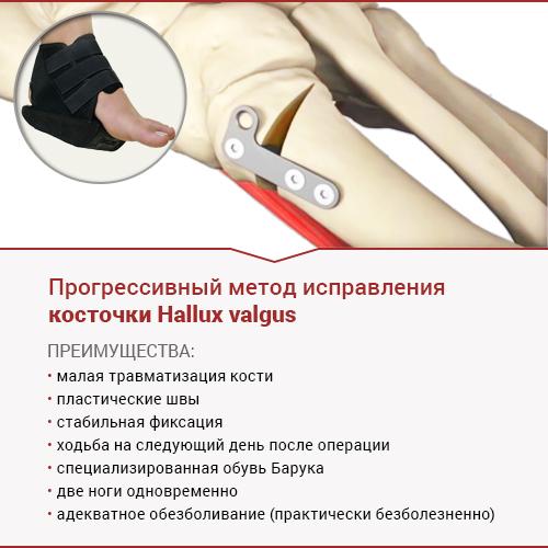 прогрессивный метод исправления косточки Hallux valgus