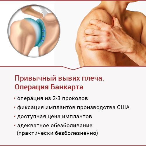 привычный вывих плеча. Операция Банкарта