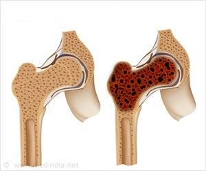 Лечение опухоли костей и мягких тканей