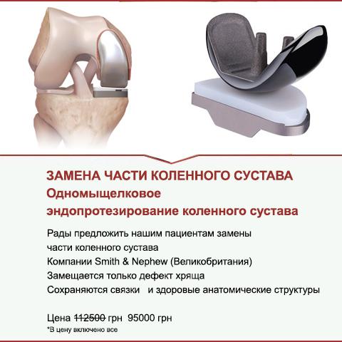 Замена части коленного сустава