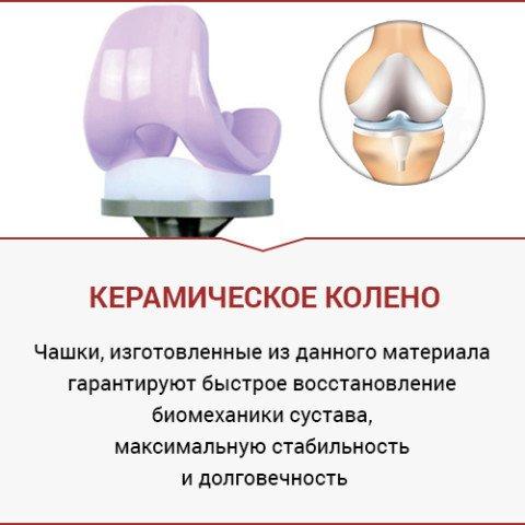 эндопротезирование одесса - керамическое колено