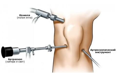 05-operatsiya-menisk